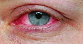 Göz nezlesi nedir nasıl geçer neden olur? Göz nezlesine ne iyi gelir