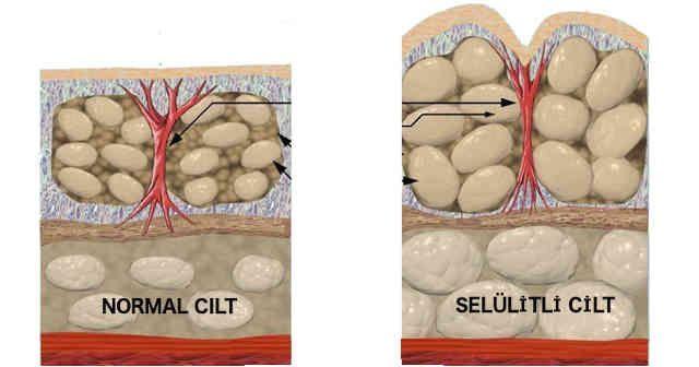Selülit nedir neden oluşur nasıl tedavi edilir selülit neden olur nasıl geçer