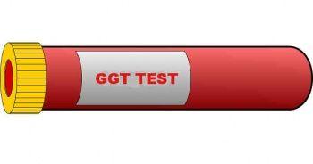 GGT Nedir Testi Nasıl Yapılır? GGT yüksekliği nedenleri belirtileri ve tedavisi