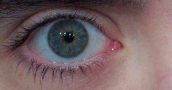 Göz Seğirmesi Nedir Göz Seğirmesi Neden Olur? Sağ göz seğirme nedenleri