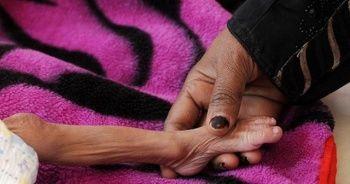 Milyonlarca Yemenli aç uyuyor