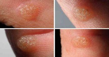Yüzdeki parmaktaki ayaktaki siğil nasıl geçer evde bitkisel tedavisi