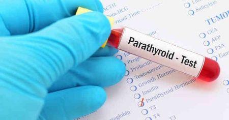 Parathormon nedir ne işe yarar görevi nedir, Parathormon kan testi