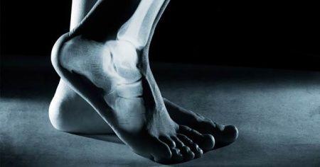 """""""Topuk ağrısını hafife almayın"""""""