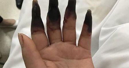 Elindeki kesik yüzünden 8 parmağını kaybediyordu