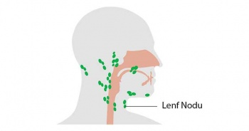 Lenf nodu nedir neden olur Lenf nodu şişmesi belirtileri kanser mi?
