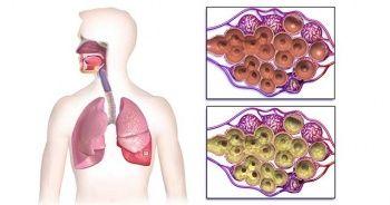 Akciğerde Su Toplanması Nedenleri Tedavisi Ne Kadar Sürer