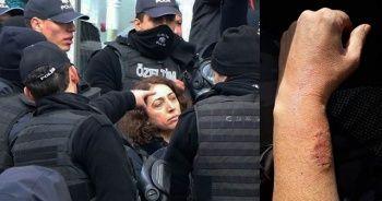 Polis memurunun kolunu ısıran HDP'li vekil hakkında soruşturma başlatıldı!