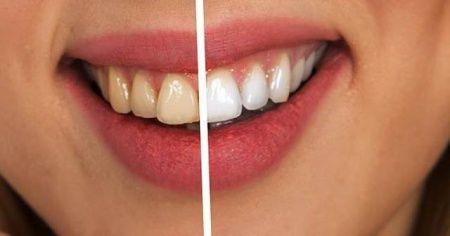 Dişteki sararmalar kabusunuz olmasın! Beyazlatmak çok kolay...