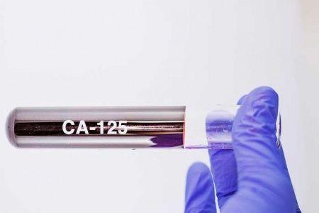 CA 125 Nedir Kaç Olmalı Yüksekliği Belirtileri