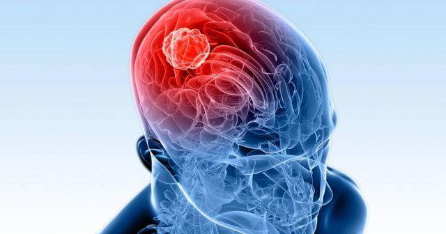 Beyin tümörü hastaları ne kadar yaşar,  Beyin tümörü neden olur?