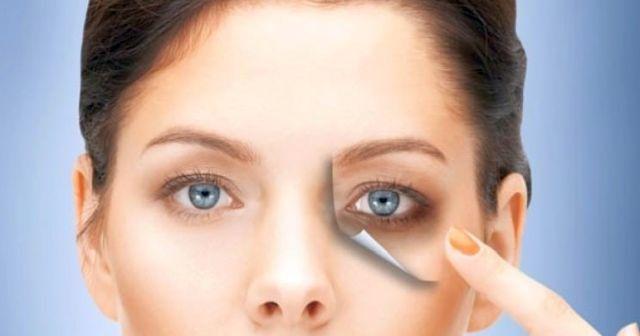 Göz altı morlukları nasıl geçer, Göz Altı Morlukları Nedenleri?