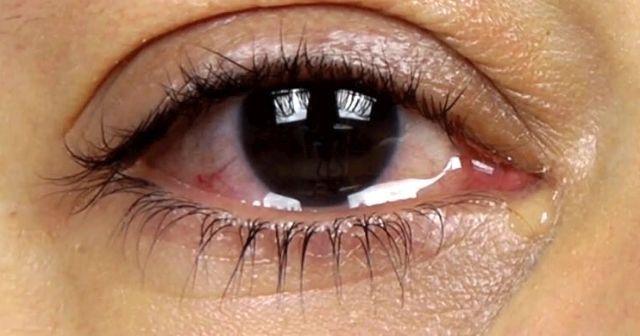 Göz sulanmasına ne iyi gelir, Göz sulanmasının nedenleri