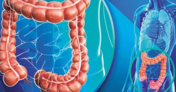 Bağırsak enfeksiyonu belirtileri, Bağırsak enfeksiyonu nasıl tedavi edilir?
