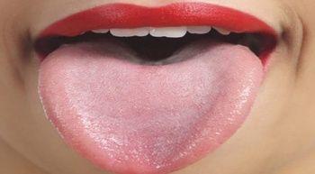 Dilde Sivilce Neden Çıkar? / Dilde Çıkan Sivilce Nasıl Geçer? / Dilde Çıkan Sivilceye Doğal Tedavi Yöntemleri Nelerdir?