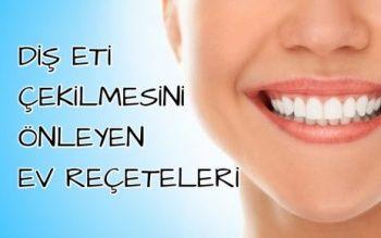 Diş Eti Çekilmesi / Diş Eti Çekilmesinin Bitkisel Tedavisi
