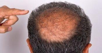 Erkek tipi saç dökülmesi nasıl önlenir, saç dökülme tedavi yöntemleri nelerdir?