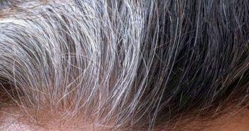 Erken yaşta saç beyazlamasının nedenleri, Saçların erken beyazlamasının nedenleri?