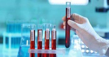 Gamma glutamil transferaz testi neden yapılır, GGT Yüksekliği Nedenleri nedir?