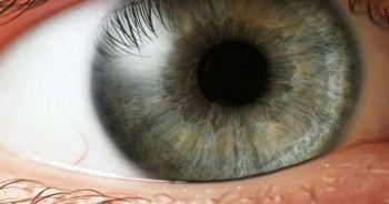 Göz batmasına ne iyi gelir, göz batmasına iyi gelen tavsiyeler, Göz batması nasıl geçer?