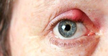 Göz kapağı şişmesi neden olur ve göz kapağı şişmesine neler ne iyi gelir?