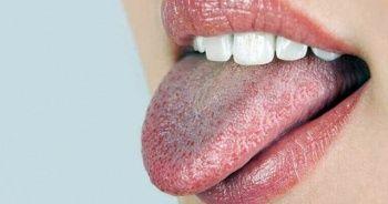 Hamilelikte ağız kuruluğu, Hamilelikte ağız kuruluğu nedenleri?