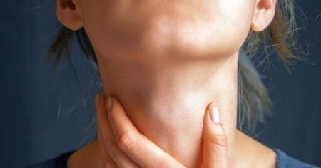 Boğaz yanmasına ne iyi gelir, Boğaz yanmasıyla alakalı tedavi yöntemleri?