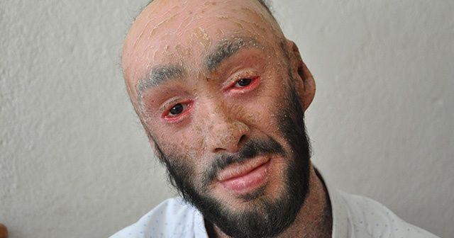 Cilt hastalığına yakalanan Hakkarili Refik Töre yardım bekliyor