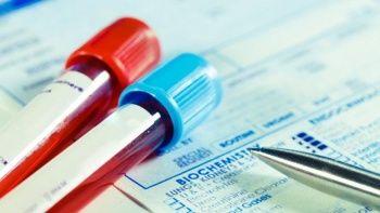 Aspartat Aminotransferaz (AST) Nedir? AST Yüksekliği Ve Düşüklüğü Ne Anlama Gelir?