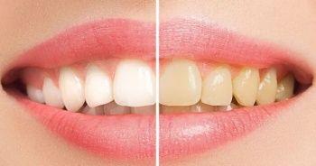 Beyaz diş nasıl görünür nasıl diş beyazlatılır, Diş beyazlatma yöntemleri nelerdir?