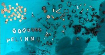 Doktorlar bile şaşırdı: 680 gram metal yutan adam hayatını kaybetti