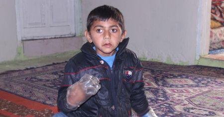 Minik Yusuf'un dramı: Ailesi ellerini plastik şişeye bağlıyor