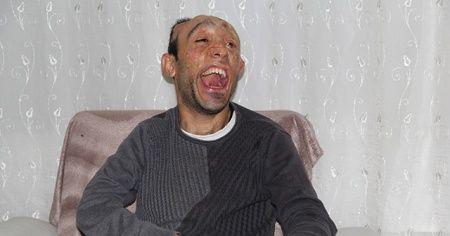 Vücudu yanan Mehmet Ali'nin dramı