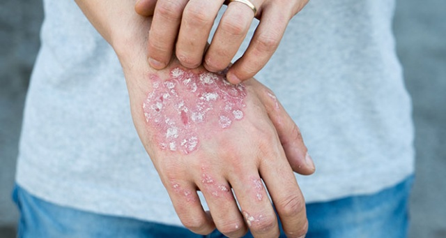 'Bazı bitkisel ilaçlar sedef hastalığını alevlendirebilir'