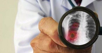 Japonya'dan korona virüsü açıklaması