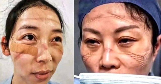 Çin'de koronavirüs dünyada manşet olan sağlık görevlilerini de vurdu
