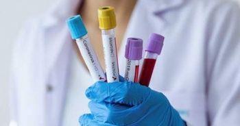 Koronavirüs Cezayir'e de sıçradı