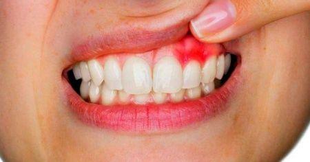 Gingivit nedir, Gingivit belirtileri nelerdir neden olur, gingivit diş eti rahatsızlığı nedir