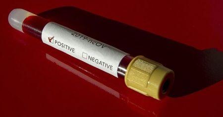 İki ülkede daha koronavirüs vakası görüldü