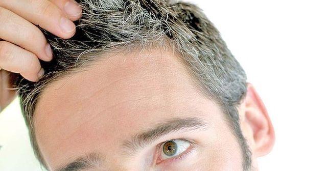 Beyaz saç tedavisi beyaz saçlara doğal çözümler