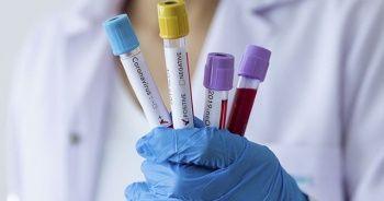 İran'da yeni doğan bir bebekte koronavirüse rastlandı