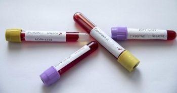Japonya'da koronavirüs nedeniyle ölenlerin sayısı 43'e yükseldi