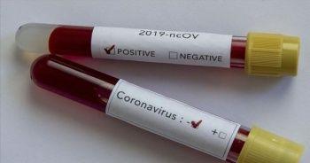 Koronavirüs sindirim yoluyla bulaşmıyor