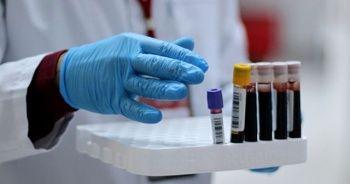 Ç.Ü., Kovid-19 tedavisinde alternatif yeni bir etken madde geliştirdi