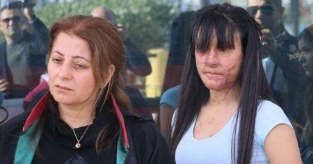 Eski erkek arkadaşının asitli saldırısına uğrayan Berfin Özek şikayetinden vazgeçti