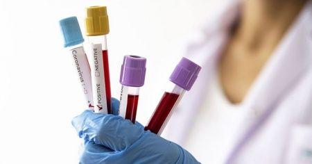 KKTC'de korona virüsten 2. ölüm