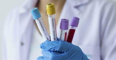 Rusya'da korona virüsten ölenlerin sayısı 24'e yükseldi