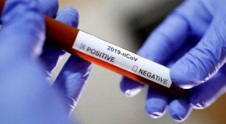 Virüs aşı ve ilacı için ilk aşama tamam