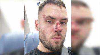 Alman polisi Türk gencin burnunu kırdı