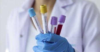 Kanada'da koronavirüsten ölenlerin sayısı 6 bini geçti